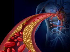 Read more about the article Atualização da diretriz brasileira de dislipidemia e prevenção da aterosclerose